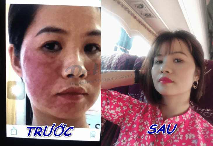 Hành trình lấy lại làn da trắng mịn như Ngọc Trinh của chị Loan tại Dr Thái Hà