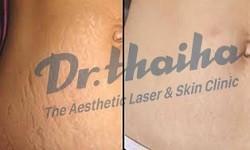 Điều trị rạn da