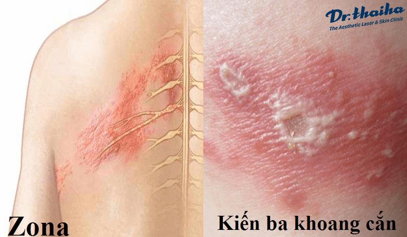 Phân biệt bệnh ngoài da do kiến ba khoang và zona