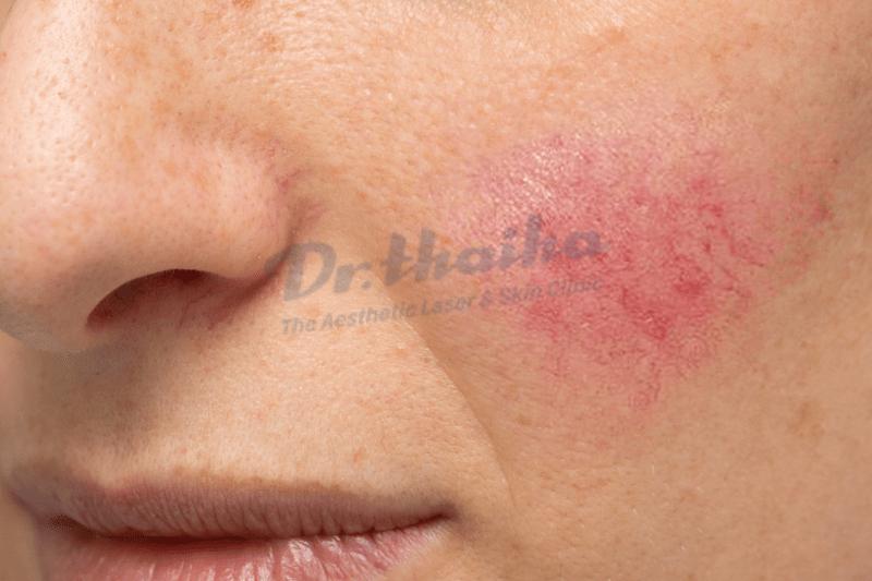 Dấu hiệu da nhiễm Corticoid và cách xử lý an toàn nhất