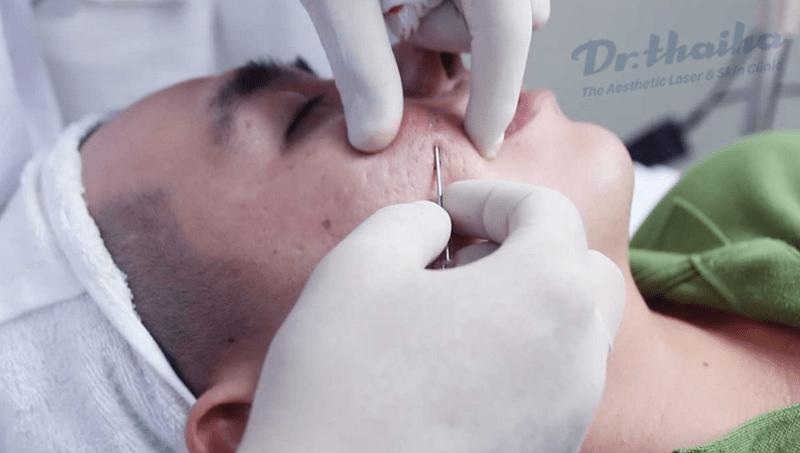 Quy trình cắt đáy sẹo lõm không đau cùng bác sĩ da liễu