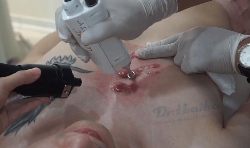 Điều trị sẹo lồi với năng lượng laser hiện đại