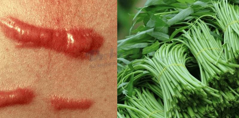 Sẹo lồi hình thành thế nào, ăn rau muống có bị sẹo lồi không?