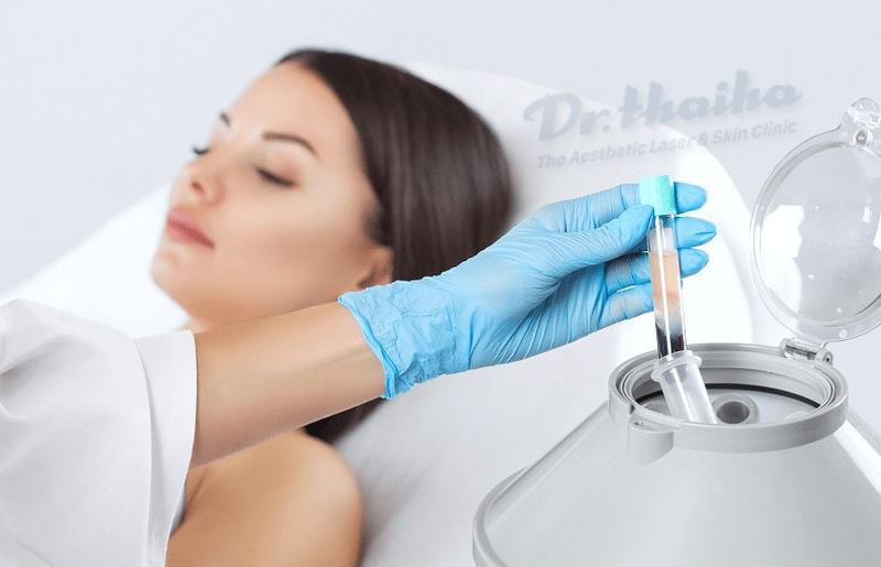 Tìm hiểu về dịch vụ trẻ hóa da bằng máu tự thân – PRP