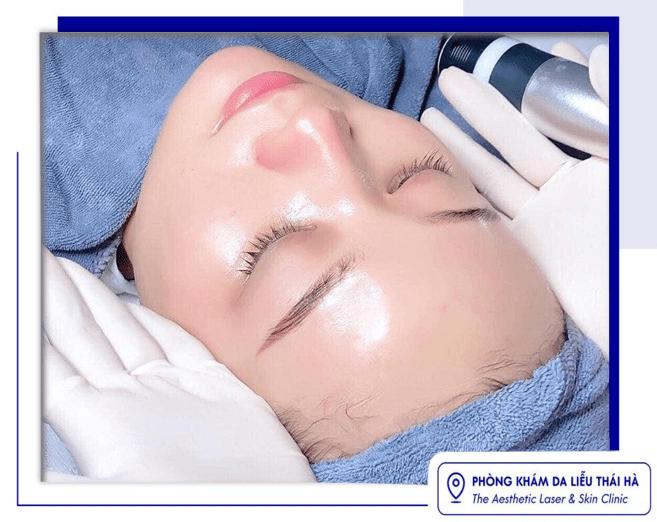 Điều trị sẹo thâm mất bao nhiêu lâu, 3 cách trị sẹo hiệu quả