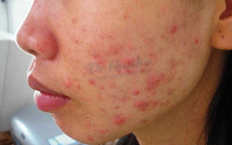 Nguyên nhân và dấu hiệu da bị nhiễm độc kim loại nặng