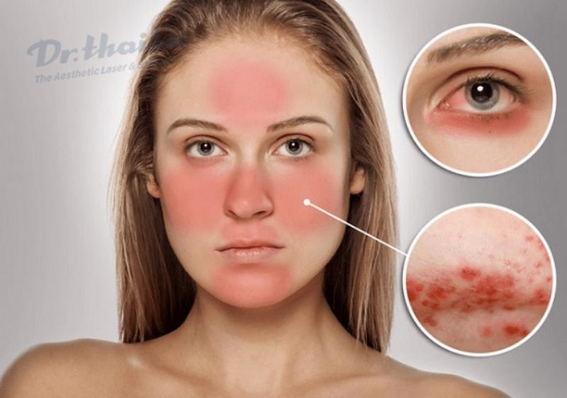 Peel da bị đỏ bao lâu, khi nào cần thăm khám bác sĩ?