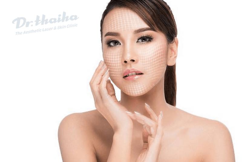Quy trình căng chỉ collagen như thế nào mới đảm bảo an toàn
