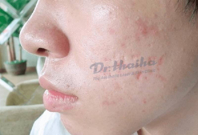 Hỏi đáp: Tại sao sẹo rỗ tái phát sau khi điều trị?