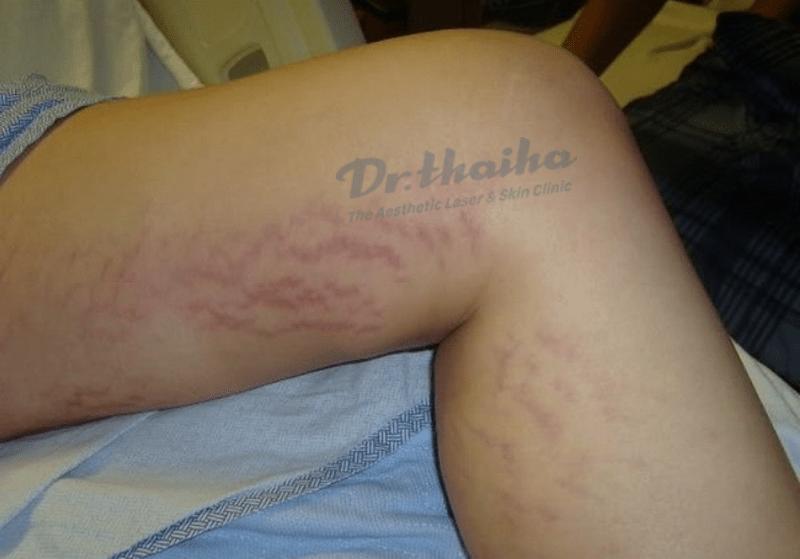 Tìm hiểu về hiện tượng rạn da ở nam giới