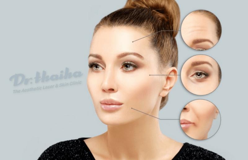 Botox xóa nhăn có tác dụng trong bao lâu?