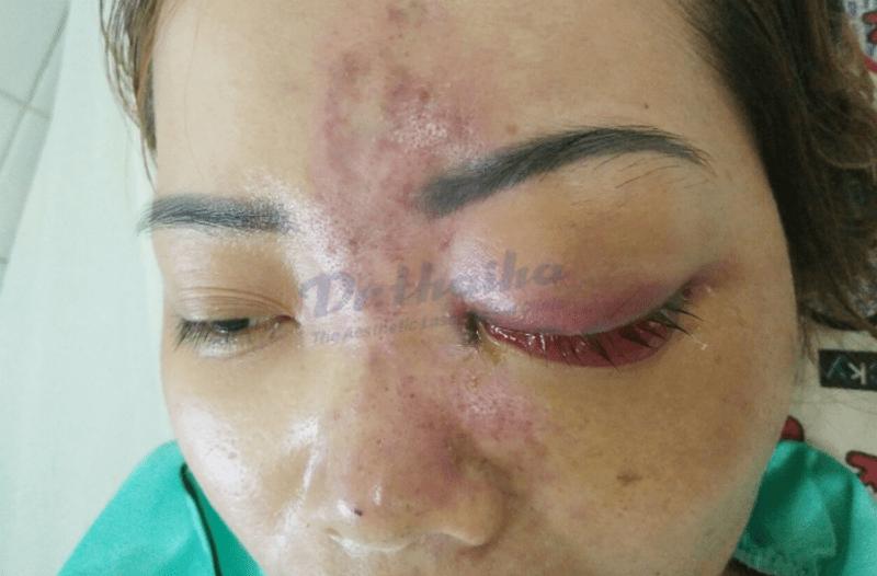 Cảnh báo biến chứng tiêm filler mũi bị mù mắt