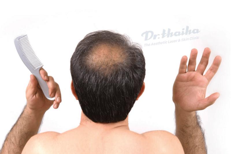 Rụng tóc androgen là gì? Có thể cải thiện được không