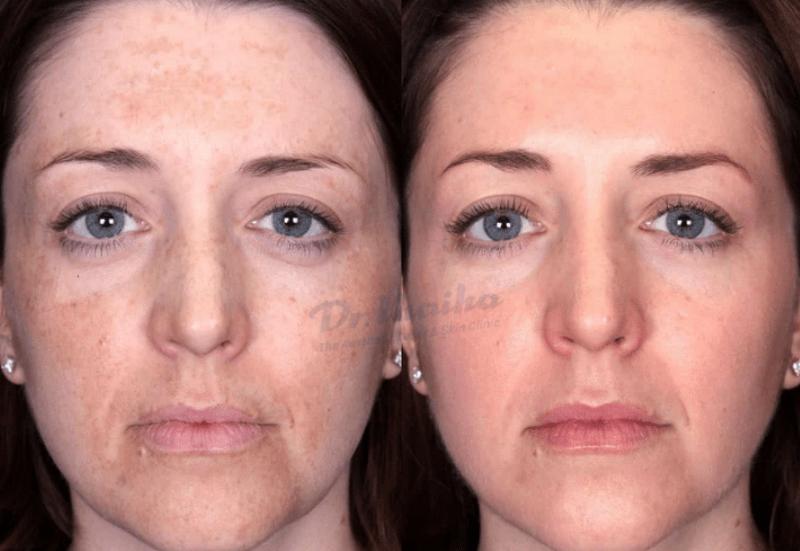 Tìm hiểu về kỹ thuật peel da trong điều trị nám và trẻ hóa da