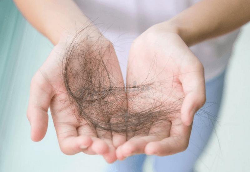 Phân biệt rụng tóc sinh lý và rụng tóc bệnh lý. Giải pháp điều trị an toàn
