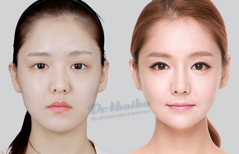 Hỏi đáp: Tiêm botox thon gọn hàm giữ được bao lâu