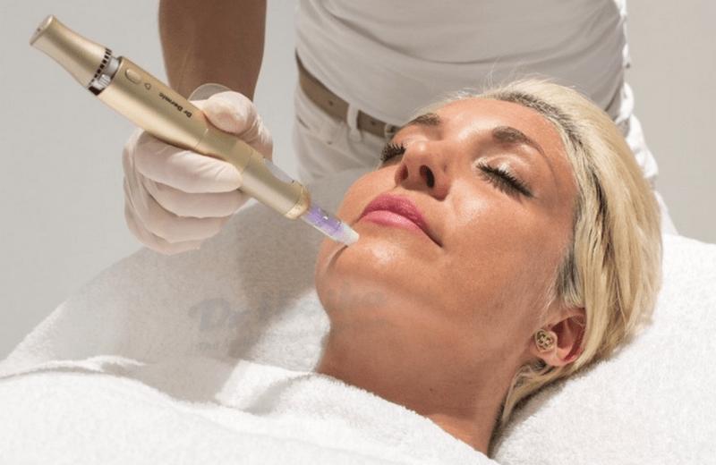 Video lăn kim trị mụn, nám da bằng tế bào gốc tại Dr.thaiha