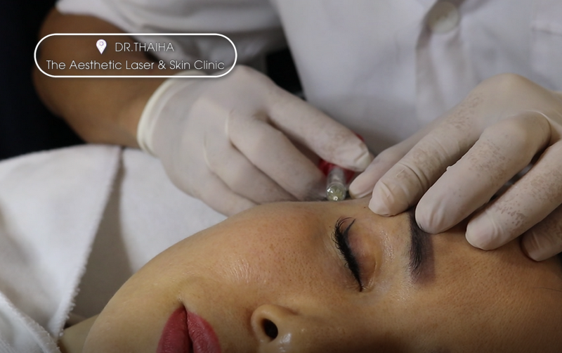 [Hà Nội] Học tiêm filler botox ở đâu tốt nhất hiện nay