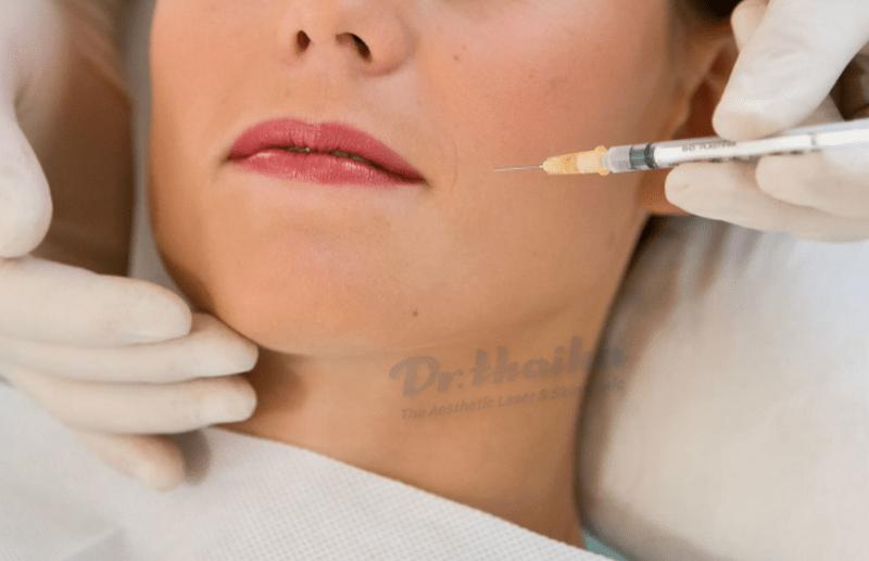 Tiêm botox gọn hàm có được vĩnh viễn không? Bác sĩ chia sẻ