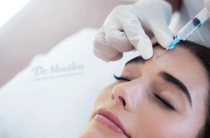 Tiêm botox quá liều có ảnh hưởng gì không? Cách phòng tránh