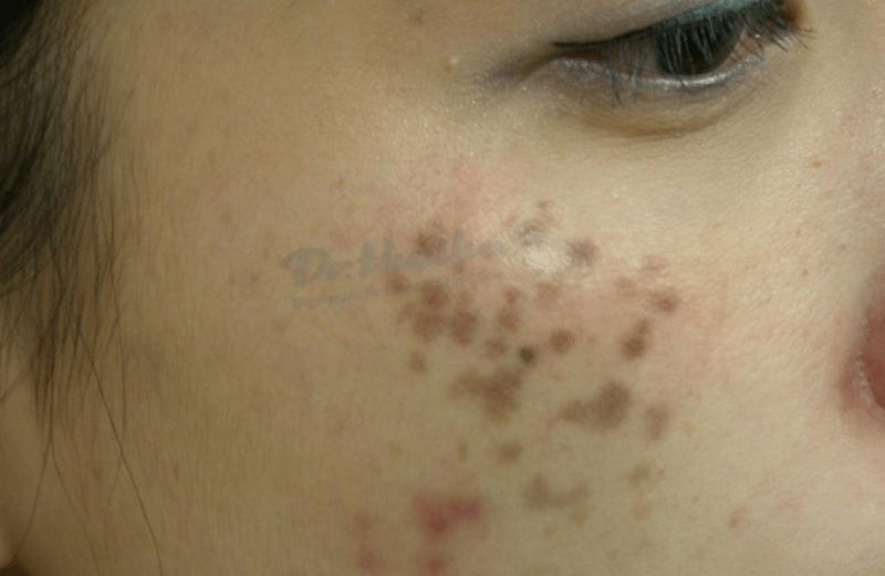 Tổng hợp các dạng bệnh rối loạn sắc tố da mặt thường gặp