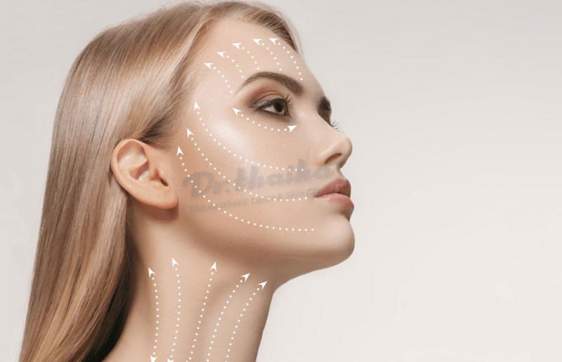 Hỏi đáp: Căng da mặt bằng chỉ PDO là gì?