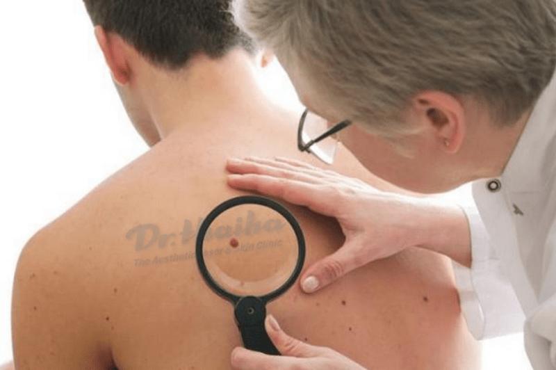 Hỏi đáp cùng bác sĩ: Phương pháp điều trị ung thư da