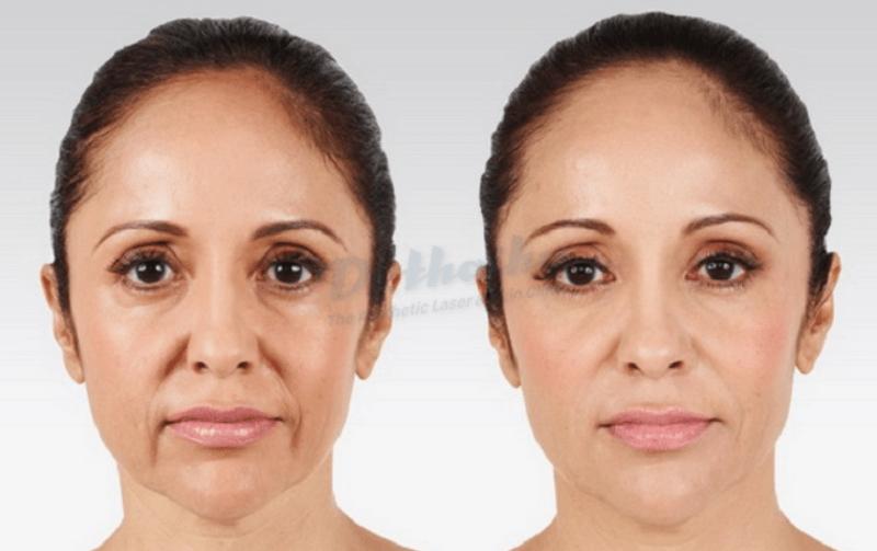 Tiêm botox gọn hàm duy trì được bao lâu?