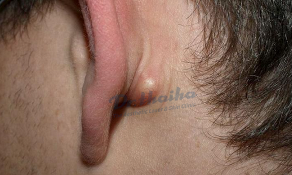 U bã bã đậu: Nguyên nhân, dấu hiệu và cách điều trị