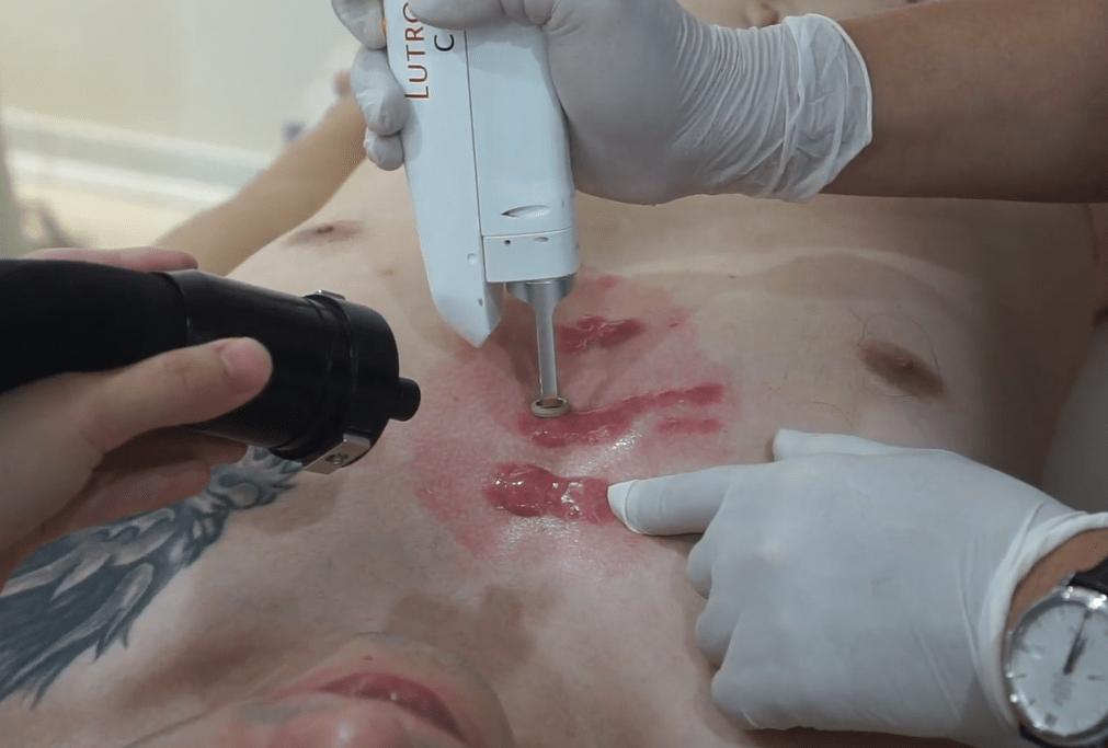 Video laser sẹo lồi kích thước lớn