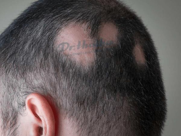Rụng tóc từng mảng: Nguyên nhân, dấu hiệu và cách điều trị