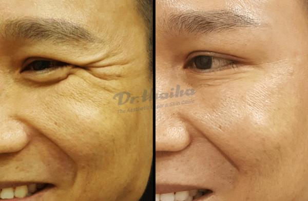 Tiêm botox mắt xóa nhăn, tan bọng mắt an toàn dành cho bạn