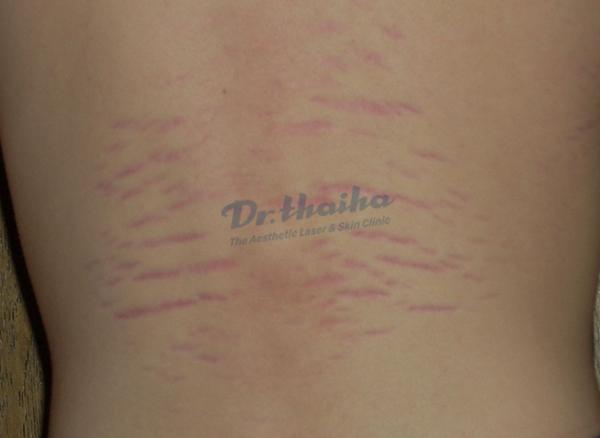 Hiện tượng rạn sau da lưng ở nam giới và cách khắc phục hiệu quả