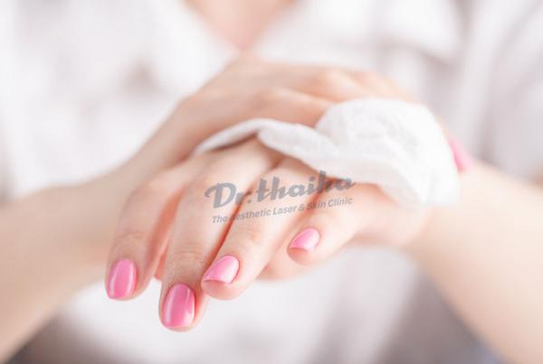 Lòng bàn tay ra nhiều mồ hôi: Nguyên nhân và cách điều trị hiệu quả