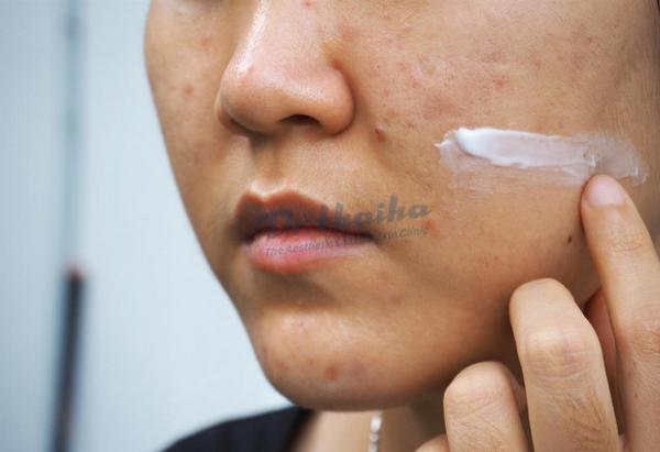 Retinoids là gì, tác động lên da như thế nào? Bác sĩ giải đáp